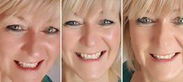 Gesichtsyoga gegen Falten, Kieferverspannungen, Zähneknirschen und Migräne
